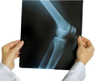 Артроз плечевого сустава симптомы одесса уколы для суставов алфлутоп фото