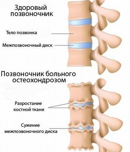 Нервные болезни - остеохондроз